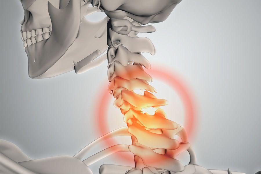 hernia-discal-sintomas