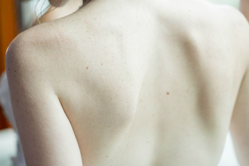 Problemas de espalda, hernia discal