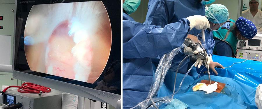 operacion endoscopia de columna vertebral en sevilla