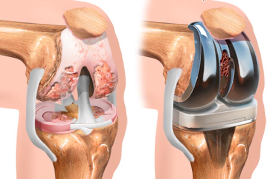 Complicaciones-tras-la-implantación-de-una-prótesis-de-rodilla