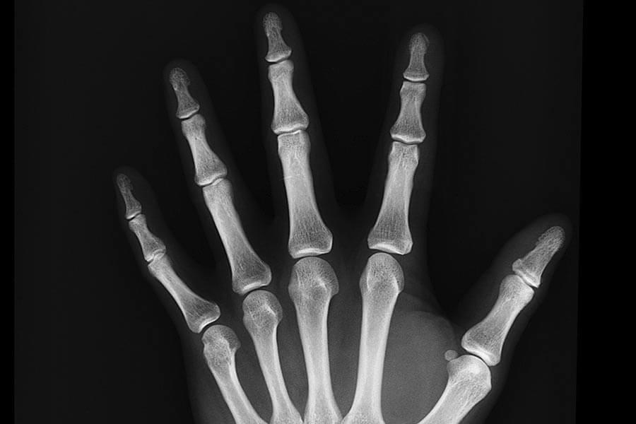 cancer-de-huesos-tratamiento