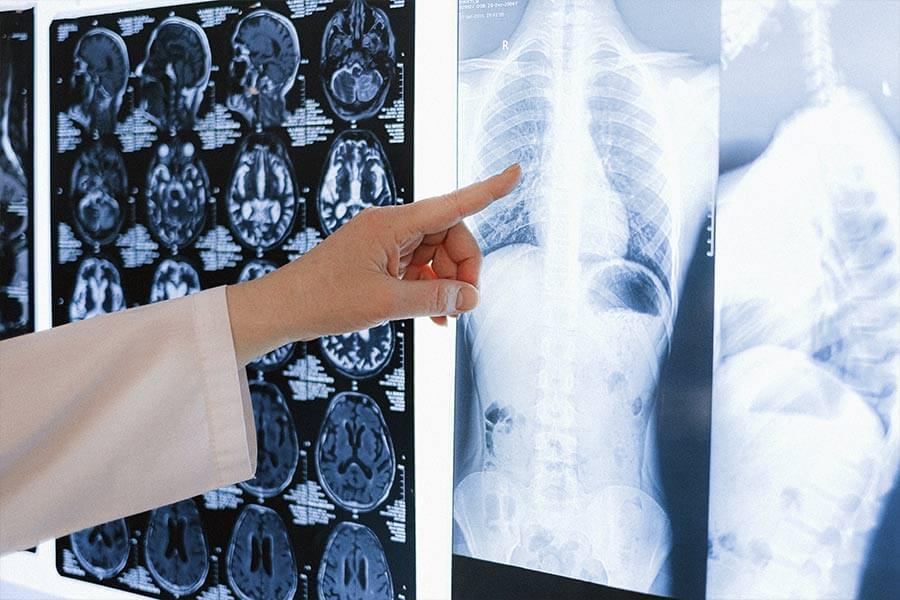 como-diagnosticar-el-cancer-de-huesos