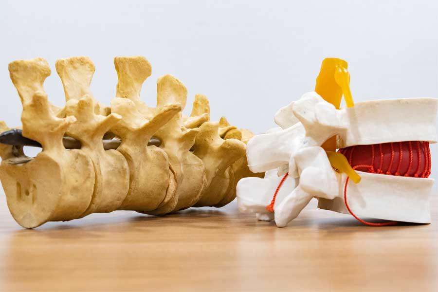 que es una artroscopia