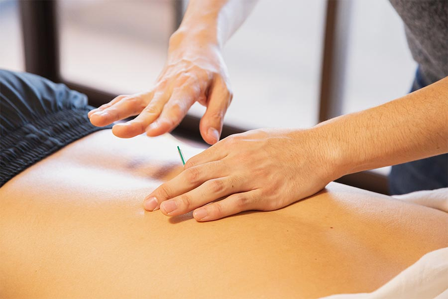 Pautas para prevenir el pinzamiento de un nervio